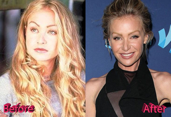 Portia De Rossi Plastic Surgery: Changes Over The Years