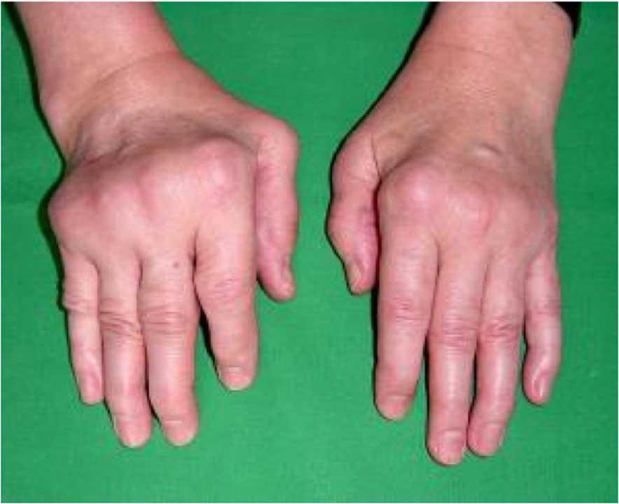 Rheumatoid Hand Surgery  Adelaide Plastic & Hand Surgery