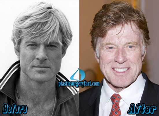 Befor After Robert Redford Plastic Surgery After