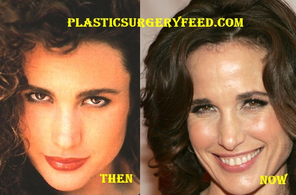 Andie MacDowell Botox Plastic Surgery