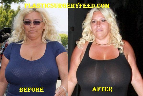 Beth Chapman Breast Implants