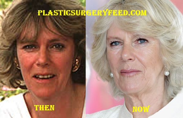 Camilla Parker Bowles Botox