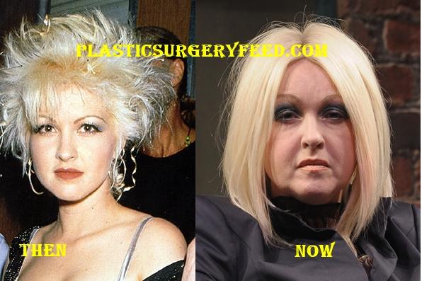 Cyndi Lauper Facelift and Botox