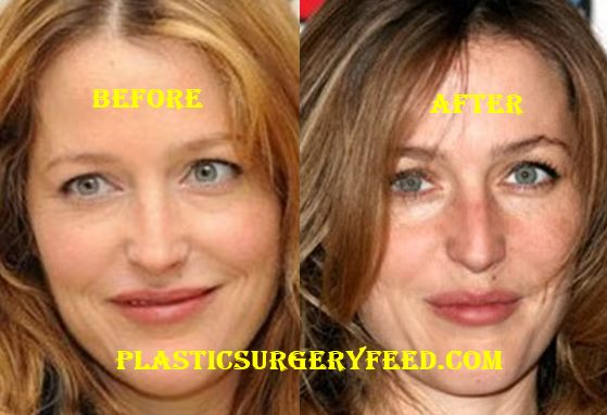 Gillian Anderson Nose Job Rhinoplasty