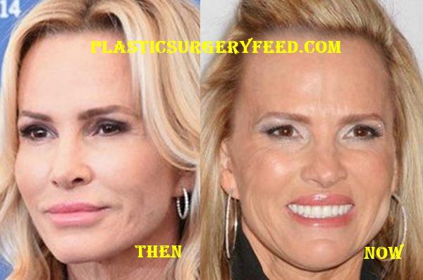Janet Gretzky Botox Plastic Surgery