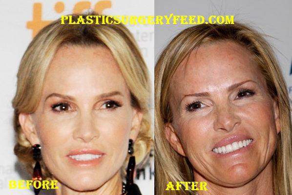 Janet Gretzky Facelift Plastic Surgery