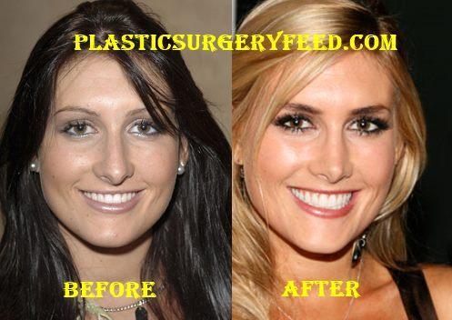 Jen Bunney Nose Job Rhinoplasty