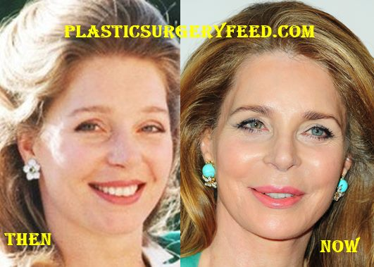 Queen Noor Favcelift and Botox Surgery