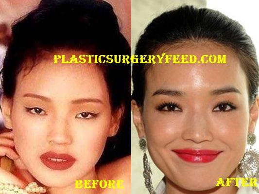 Shu Qi Nose Job Rhinoplasty