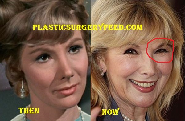 Susan Hampshire Botox Plastic Surgery