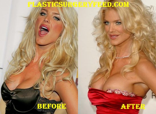 Victoria Silvstedt Breast Implants