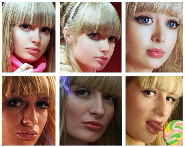 Anzhelika Kenova Barbie Surgery