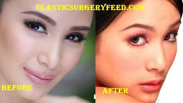 Heart Evangelista Nose Job Rhinoplasty