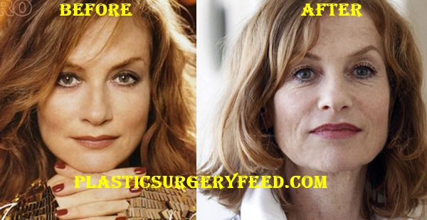 Isabelle Huppert Facelift