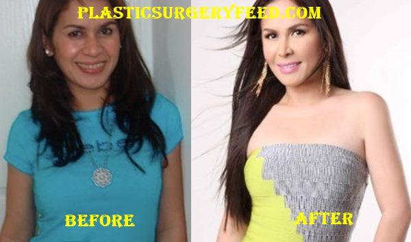 Jinkee Pacquiao Liposuction