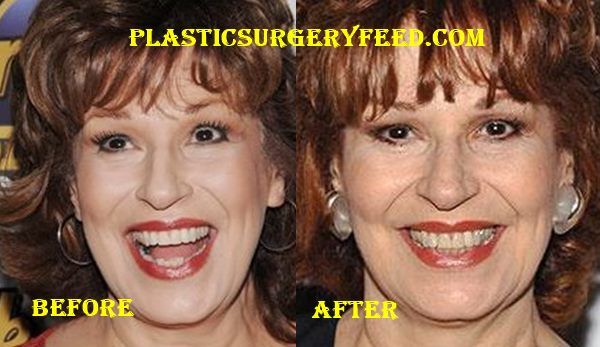 Joy Behar Botox and Facelift