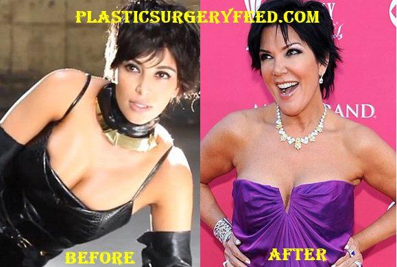 Kris Jenner Breast Implants