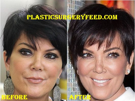 Kris Jenner Nose Job Rhinoplasty