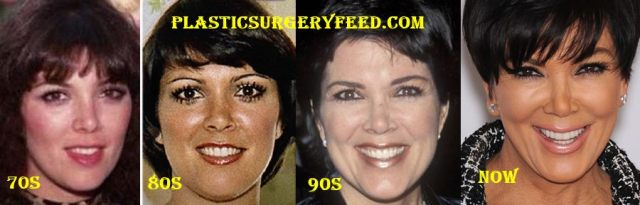 Kris Jenner Surgery Transformations