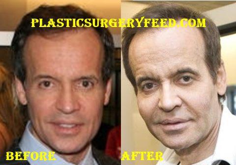 Louis Licari Botox Surgery