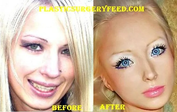 Valeria Lukyanova Barbie Surgery