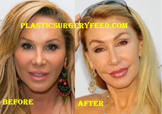 Adrienne Maloof Botox and Filler