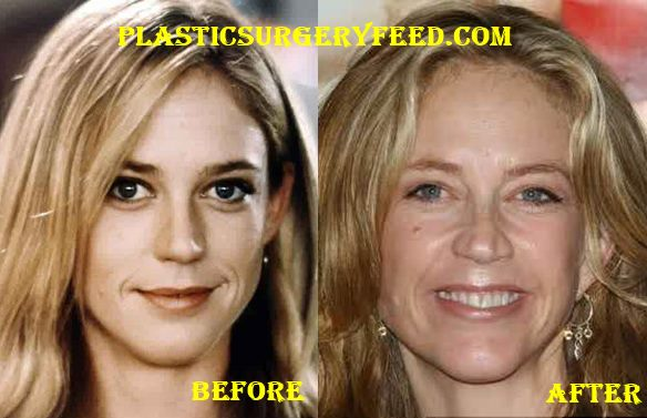 Ally Walker Nose Job Rhinoplasty