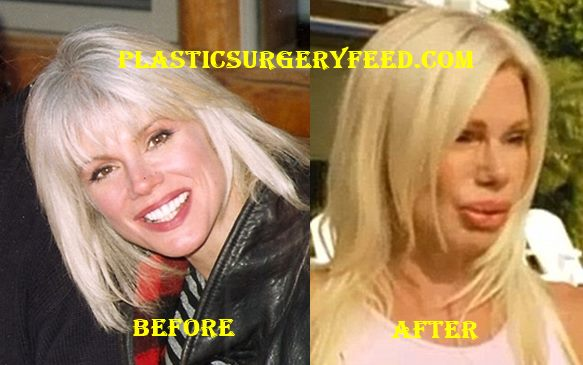 Bree Wlker Lip Implants