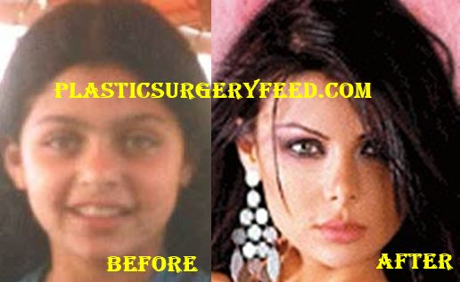 Haifa Wehbe Plastic Surgery Plastic Surgery Feed