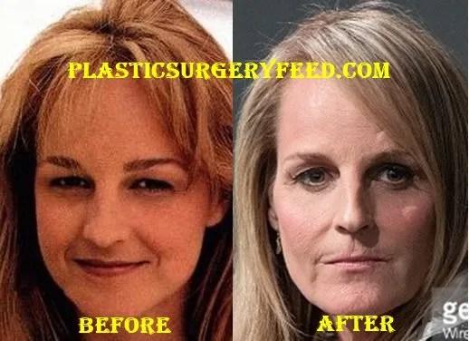 Helen Hunt Botox