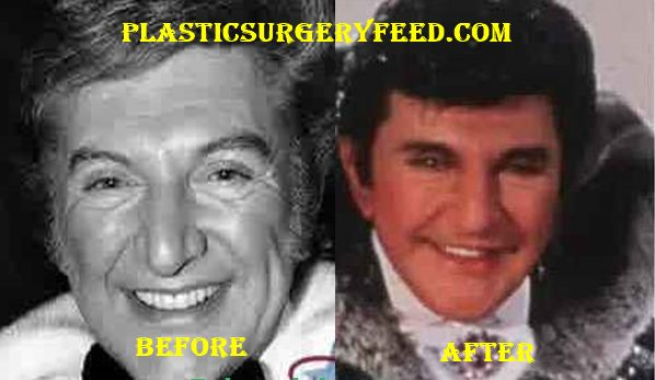 Liberace Plastic Surgery Before After