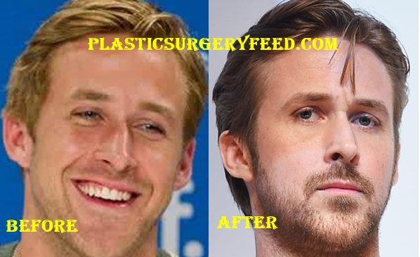 Ryan Gosling Nose Job Rhinoplastsy