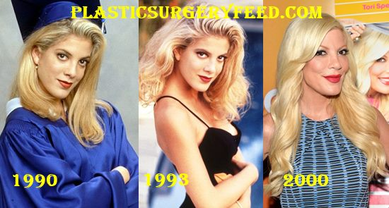 Tori Spelling Botox and Facelift 1990-2000