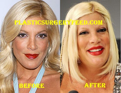 Tori Spelling Nose Job