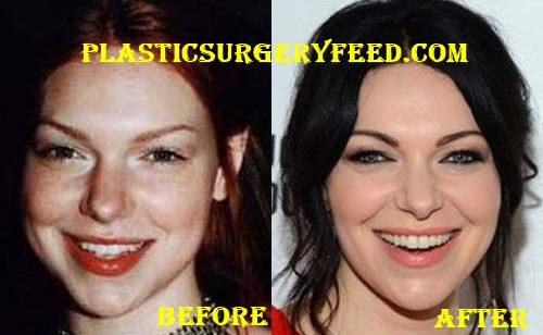 Laura Prepon Facelift and Botox