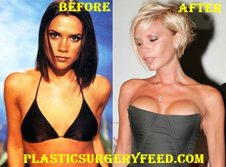 Victoria Beckham Breast Implants