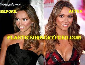 Giuliana Rancic Breast Implants Boob Job