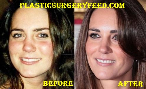 Kate Middleton Botox and Facelift