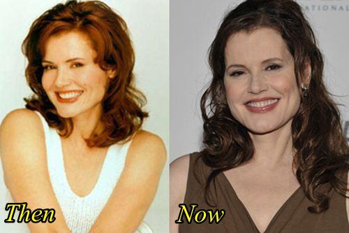 Geena Davis Botox Surgery