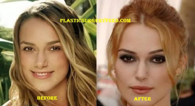 Keira Knightley Lip Implants