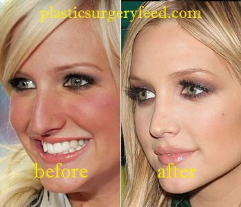 Ashlee Simpson Nose Job Before After