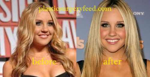 Amanda Bynes Cheek Implant