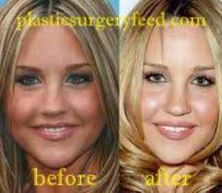 Amanda Bynes Eyelift Surgery