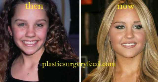Amanda Bynes Nose Job
