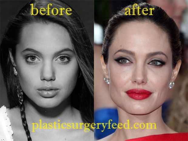 Angelina Jolie Botox