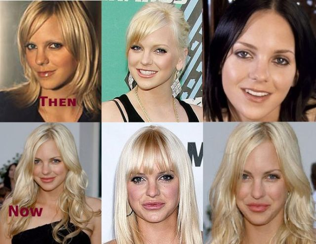 Anna Faris Face Transformation