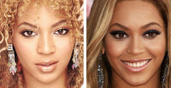 Beyonce Nose Job Rhinoplasty
