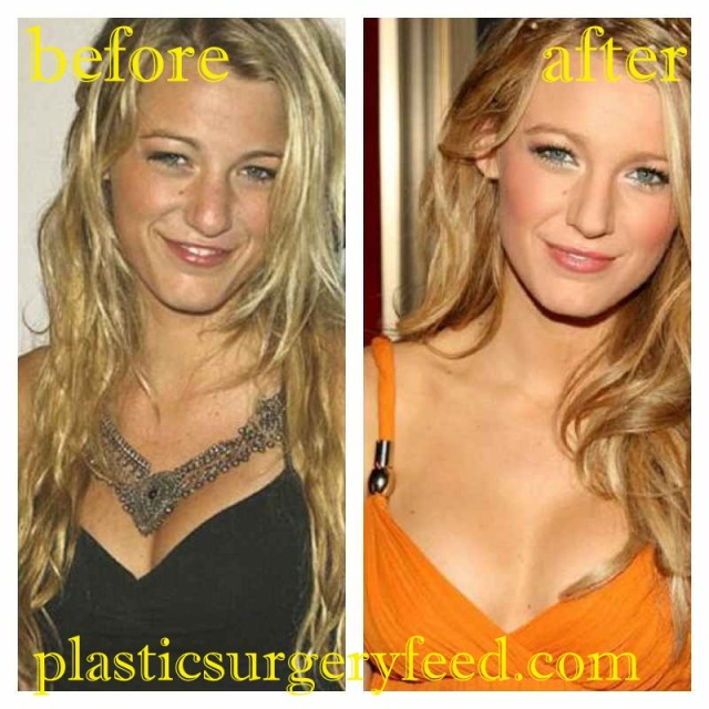 Blake Lively Breast Augmentation