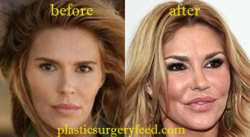 Brandi Glanville Botox