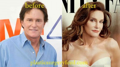 Bruce Jenner Before After